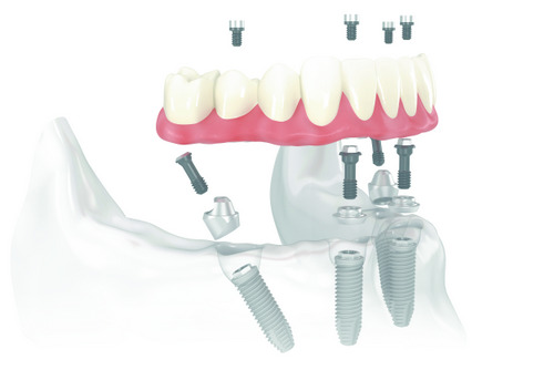 All-On-4 implant diagram